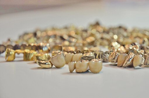 Compro oro Dentale Cleor Oro